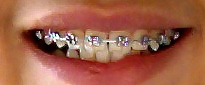 A close up of braces on teeth
