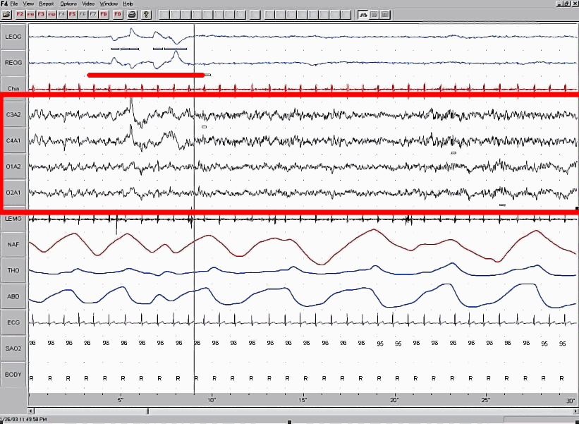 A close up of rapid eye movement graph